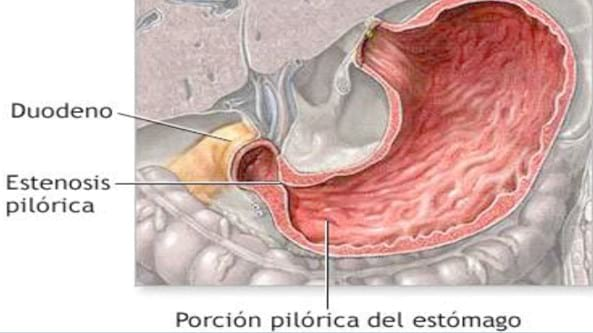 Estenosis hipertrófica pilórica – piloroespasmo. Reporte de un caso ...