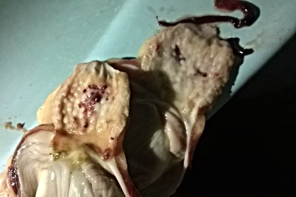 Thick haemorrhage & Erosion of the proventri - Poultry Diseases(daily collection while performing post mortem)