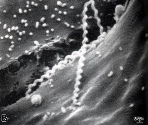 Leptospira spp. - LEPTOSPIROSIS