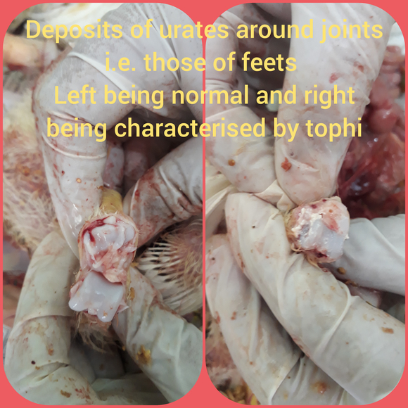 Deposits of urates around joints i.e. those of feets  Left being normal and right being characterised by tophi - Clinical issues