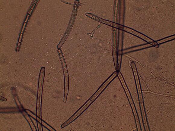 Corynespora sp. - Mi actividad
