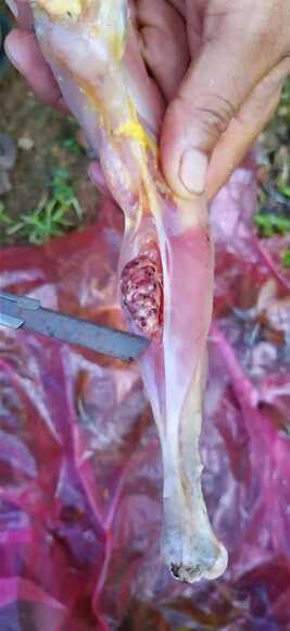 Tumor in muscle - Clinical issues