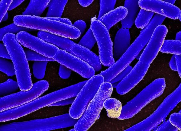 La resistencia a los antibióticos se puede transmitir de animales a personas - Image 1